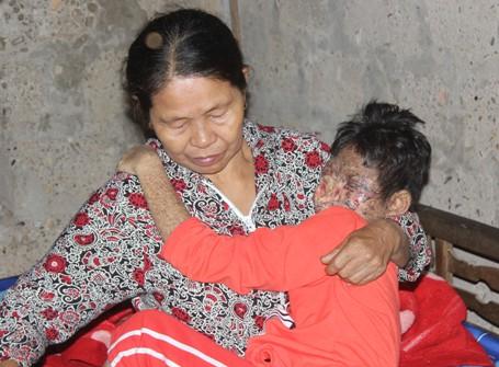 Mẹ nghèo thắt ruột nhìn các bộ phận trên mặt con bị lở loét, ăn mòn